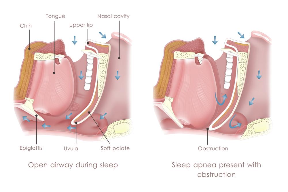 Obstructive Sleep Apnoea (OSA)|SAS Sleep Disorder Clinic