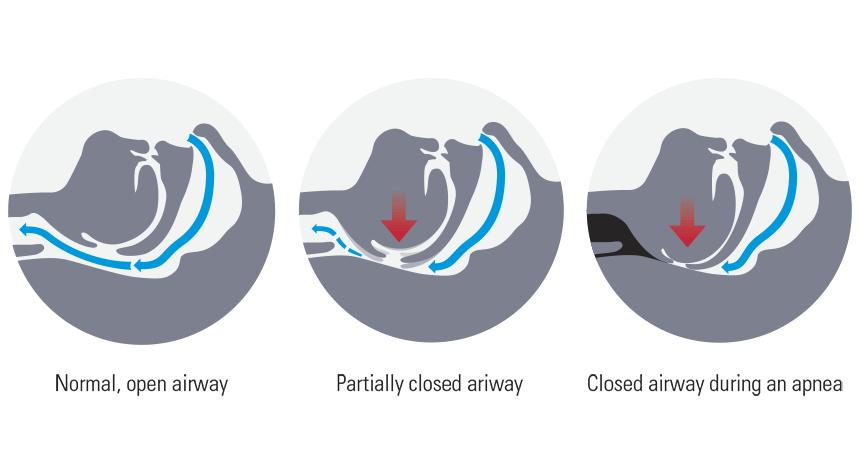 Types of Sleep Apnoea Syndrome (SAS)