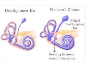 MENIERE'S DISEASE| Hearing aid center in pune