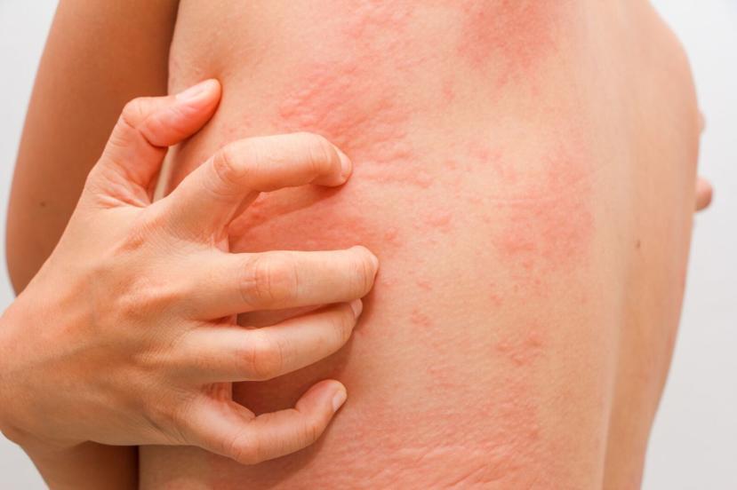 allergy treatment in pune